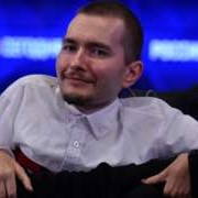 Trasplante de Cabeza…leyó bien, Trasplante de Cabeza para este señor ruso